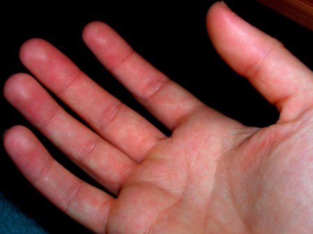 Blotches on the Palm of a Hand | LIVESTRONG.COM